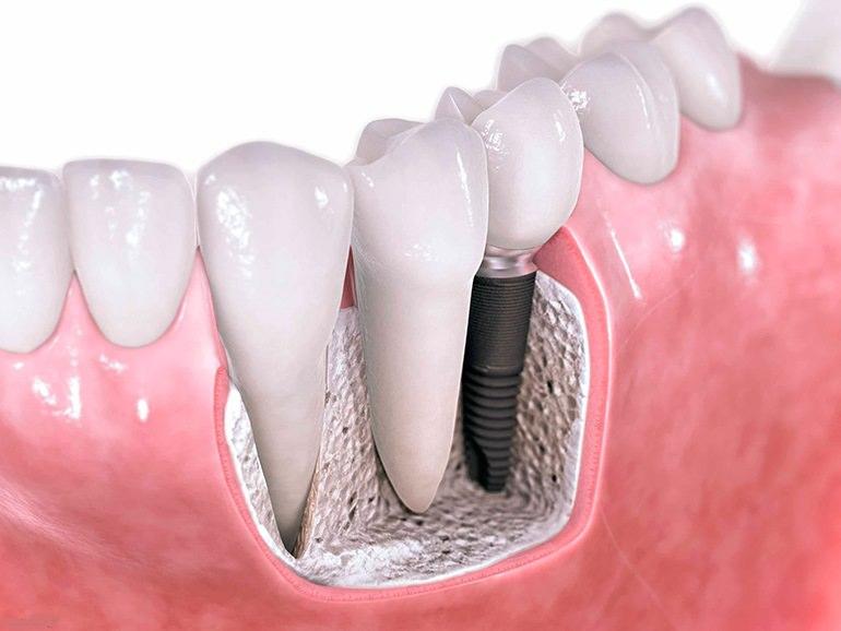 Технология по имплатации зубов.
