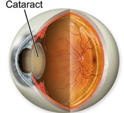 Что является причиной катаракты?