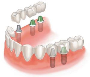 Имплантация зубов – идеальное решение