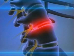 Лечение межпозвоночной грыжи диска