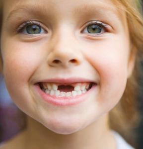 Правильный прикус у ребенка: проблема современности, или упущение родителей