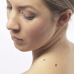 Вакцинация против меланомы