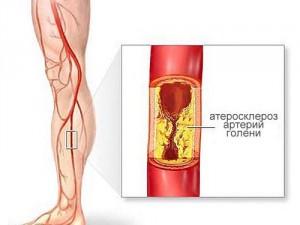 Атеросклероз - развитие и профилактика