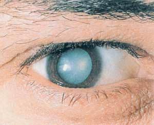 Катаракта глаза, и ее лечение