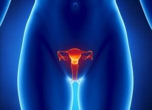 Лечение рака шейки матки: диагноз – не приговор!