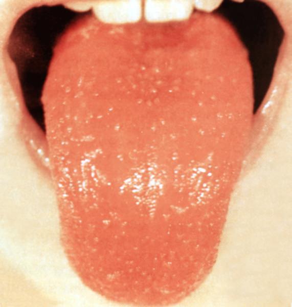 боли в горле при беременности отзывы