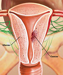 Рак матки лучше предупредить