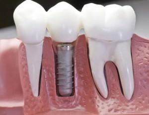 Современная имплантация зубов.
