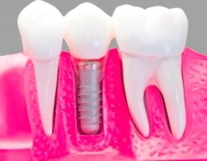 Современные стоматологические материалы