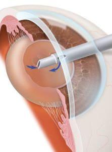 Симптомы и лечение заболевания катаракта