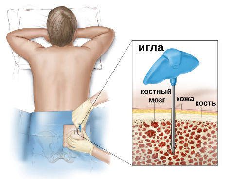 Переседка костного мозга
