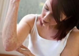 Симптомы и методы лечения лишая
