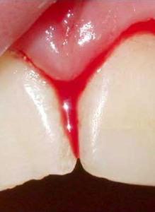 Причины возникновения кровоточивости десен