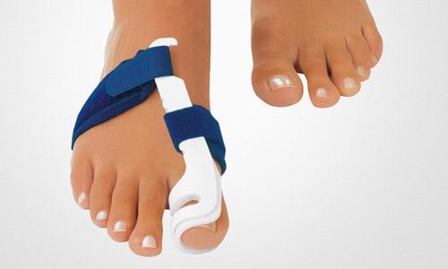 Проблема косточек на ногах