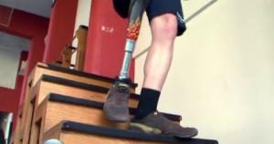 protez-nogi