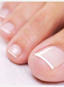 Способы лечения вросшего ногтя