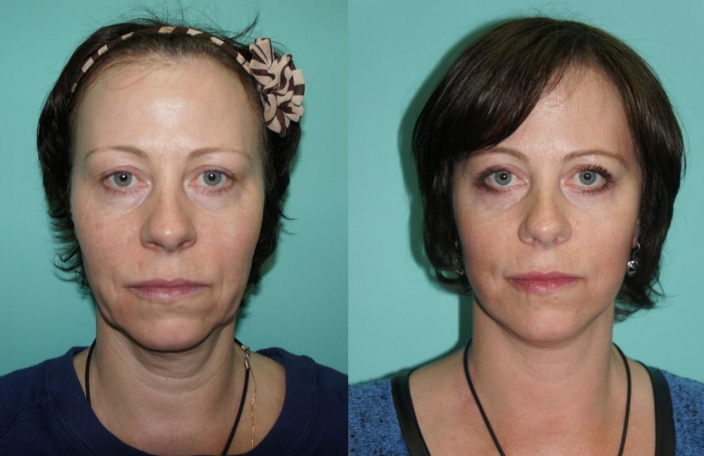 Пластическая хирургия: глубокая подтяжка лица