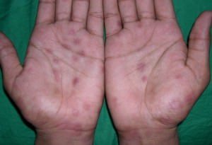 ладони с болезнью Лане