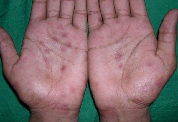 как лечить аллергию на шеллак