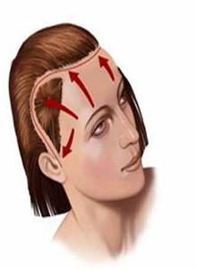 Операция по подтяжке кожи лба