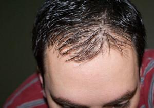 Выпадение волос: причины возникновения облысения и методы лечения.