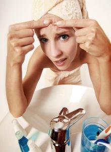 Как вылечить угревую сыпь?