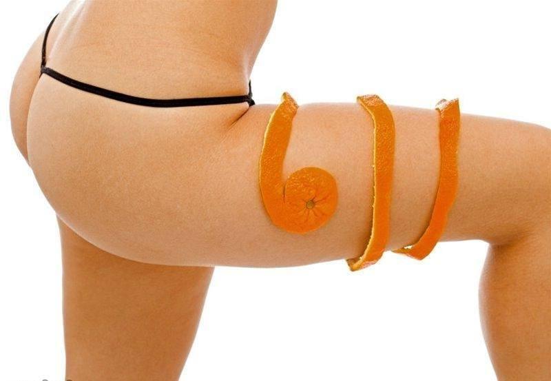 женщина с апельсиновой коркой на бедре