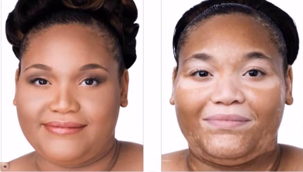 патология кожи