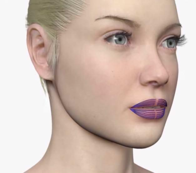 Морщины губ