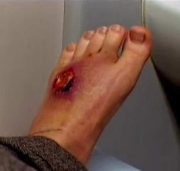 лейшманиоз  на ноге