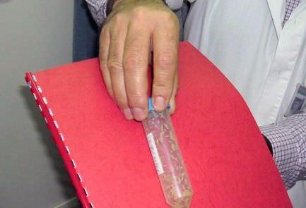 пробирка с лечебными личинками
