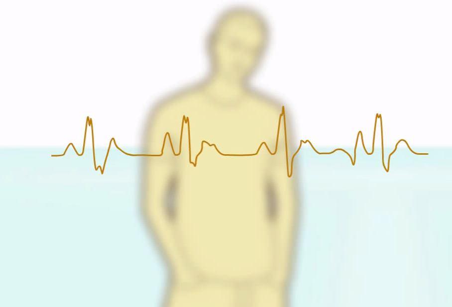 кардиограмма с человеком на заднем фоне