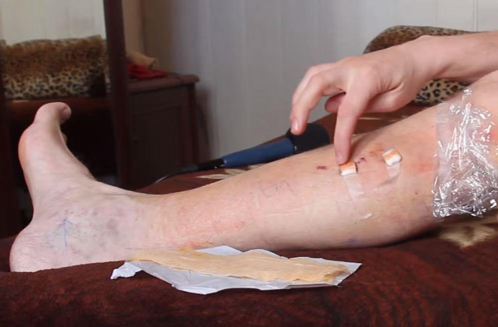 мужская нога с варикозом вен