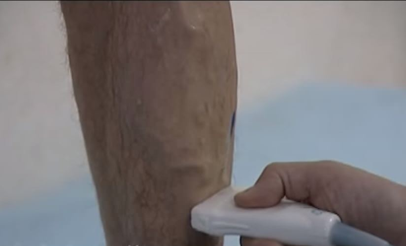 варикоз на мужской ноге