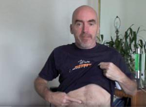 мужчина показывает пальцем на грыжу на своем животе