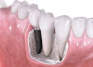 Рисунок зубного импланта рядом с живыми зубами.
