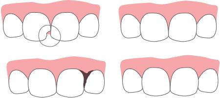 Рисунок двух челюстей.